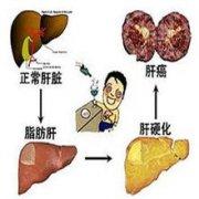 你知道非酒精性脂肪肝的治疗方法吗?