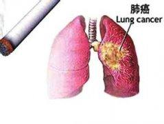 专家介绍肺癌治得好吗?