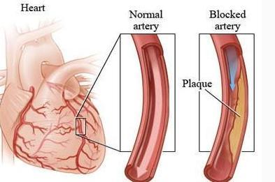 心肌缺血st段抬高机制