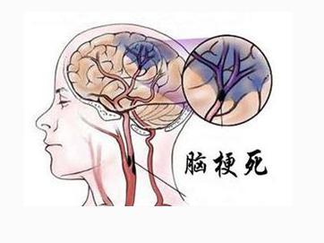 脑梗病人的康复治疗?