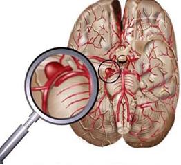 急性大面积脑梗死怎么办
