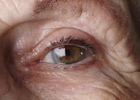老年性白内障有哪些症状