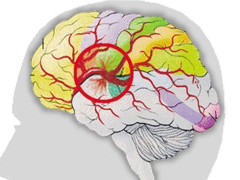 脑缺血灶能治疗吗