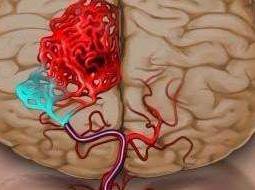 脑出血主要病因是什么