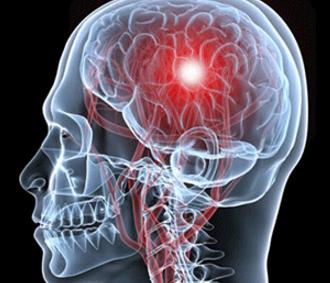 怎么能预防脑出血
