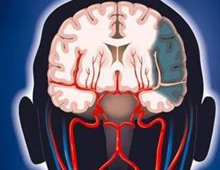 脑缺血灶怎样治疗