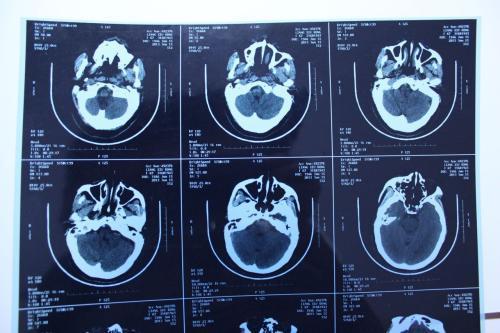脑缺血灶吃中药可以吗