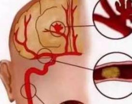 糖尿病的并发症脑出血