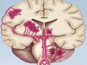 外伤性脑出血临床表现