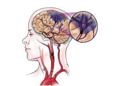 脑缺血灶如何治疗