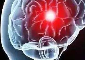 短暂性脑缺血能治好吗