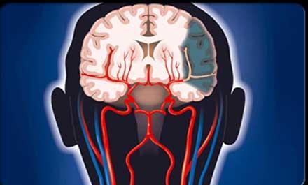脑缺血用什么药