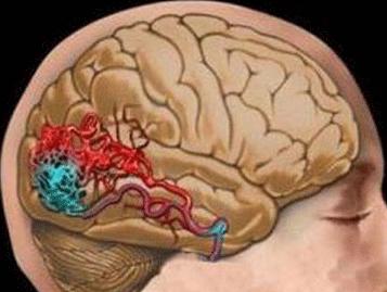 脑出血怎么预防