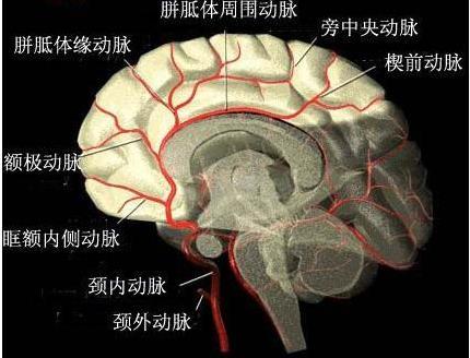 脑缺血引起脑水肿