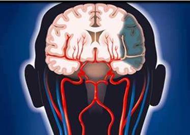 脑缺血灶吃什么药