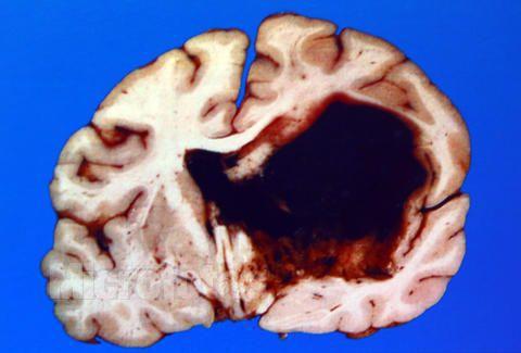 肝昏迷的治疗措施