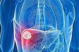 导致肝昏迷原因是什么