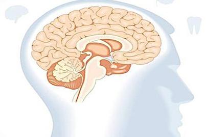 脑缺血应检查项目有哪些