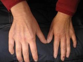 肌无力病能治好吗