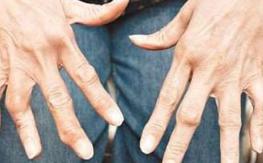 手指类风湿性关节炎