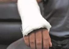 骨折后怎么处理