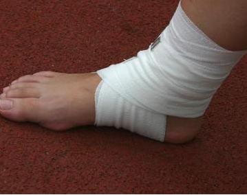 脚踝扭伤了用什么药好