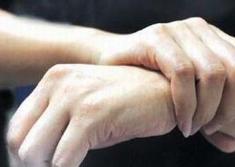 如何确诊类风湿性关节炎