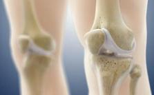 骨关节炎吃什么改善