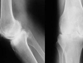 骨质疏松与骨关节炎区别有哪些