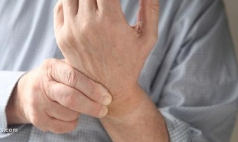 类风湿性关节炎特征表现