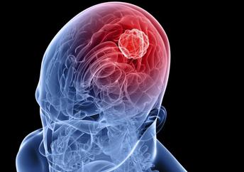 流行性乙脑典型症状