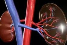 肾亏精少危害大,吃什么药可以补肾养精