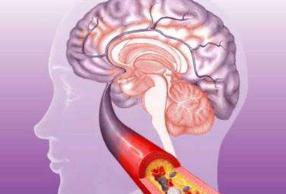 脑血栓有什么危害