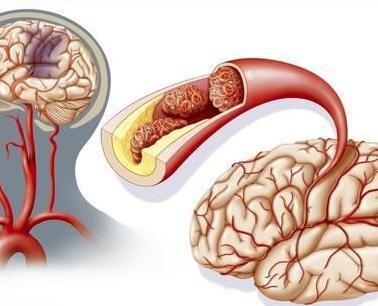 脑血栓早期的症状