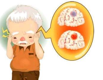 脑梗的中药治疗方法