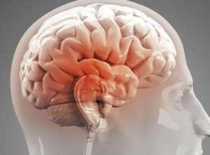 如果得了脑炎怎么办呢