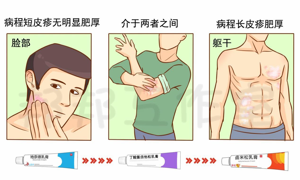 越挠越痒、精神压力大,要小心这个皮肤问题
