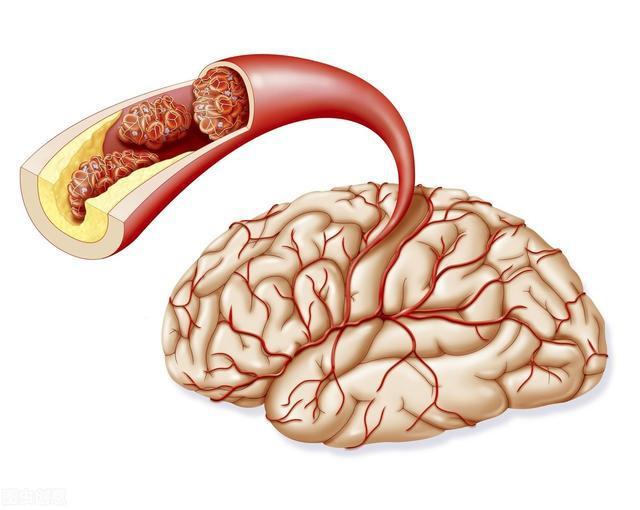 经常头晕心悸,很可能是血压超标了,3个绝招让你控制血压轻轻松