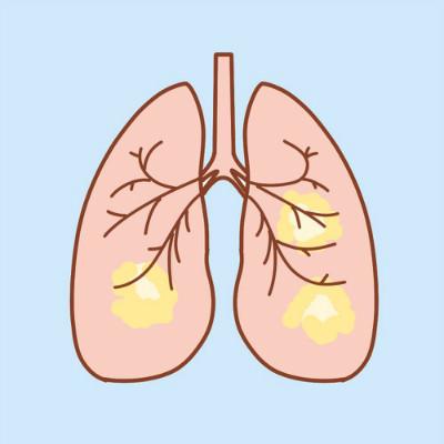 得了肺癌就没法治了?肺癌治愈不是妄想,搞清楚分期很关键