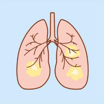 北京大学肿瘤医院王嘉医生:肺癌可以预防么?