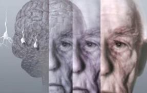 早期老年痴呆症怎么治疗