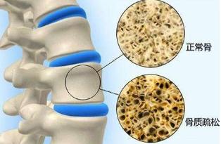 怎样检测骨质疏松
