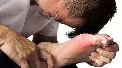 痛风症状的早期表现有哪些